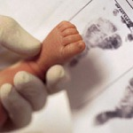 premature delivery, early delivery without medical necessity