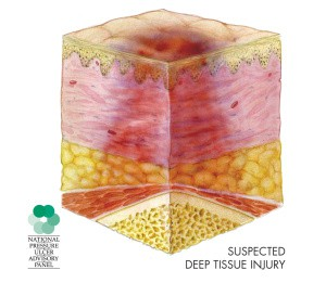 deep tissue injury