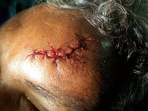 sutured head injury Patient Falls