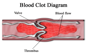 NSAIDs, VTE, blood clot