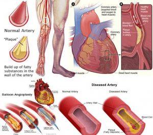 Peripheral Arterial Disease, PAD,